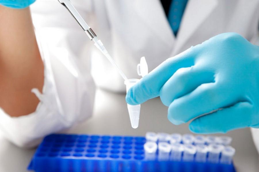 определение инфекции ПЦР слюны